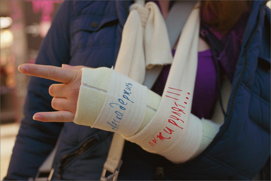 Фото рука з гіпсом 14 фотография